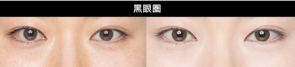 台灣人基本都是【黃皮膚】,讓肌膚更顯白及緊緻,