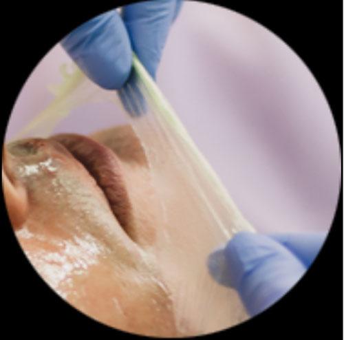 シロニー(shirony)の肌トラブル除去効果