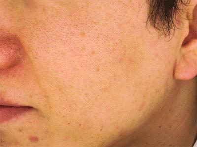 ホロベル(HOLLO BELL)を使う前のお肌