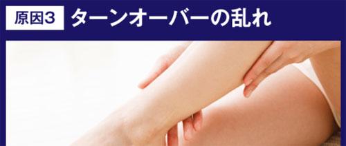 肌が黒ずむ原因3