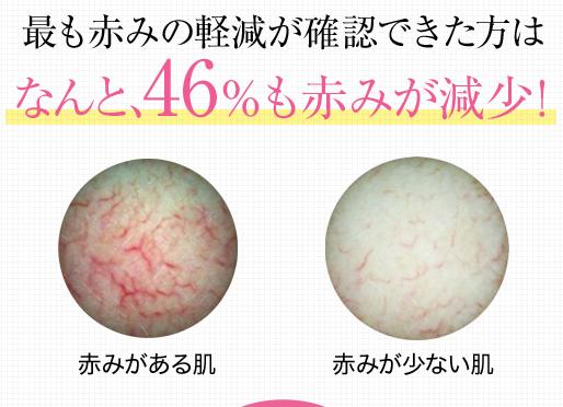 白漢 しろ彩を使えば46%も顔の赤みが軽減
