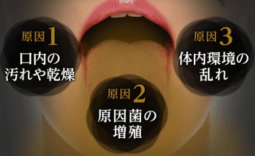 口臭の3大原因