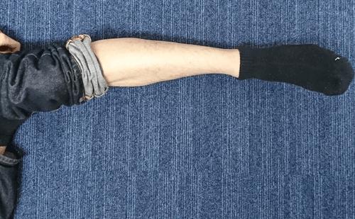 ビダンザロジック(VIDAN THE LOGIC)で除毛する前の脚