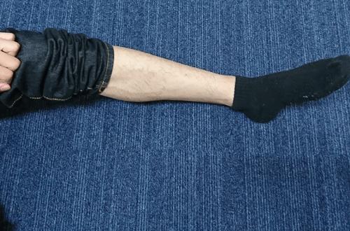 ビダンザロジック(VIDAN THE LOGIC)で除毛した後の脚