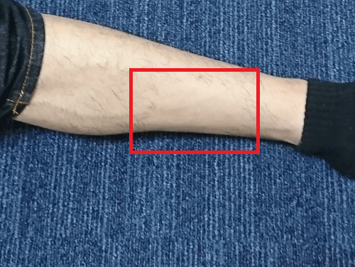 ビダンザロジック(VIDAN THE LOGIC)で除毛した脚を拡大