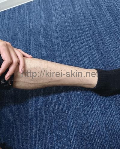 女性用ビダンザロジックで除毛した後の脚