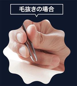 毛抜で除毛する方法