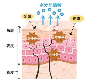 肌のかゆみが繰り返される原因